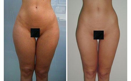 Body liposculpture