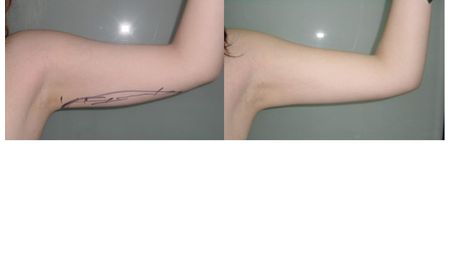 Brachioplasty - upper arm lift