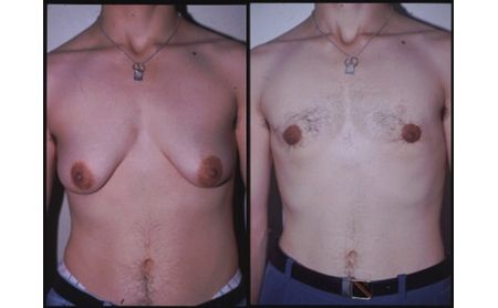 Breast surgery in transsexuals