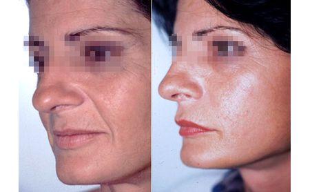 Facial lipofilling