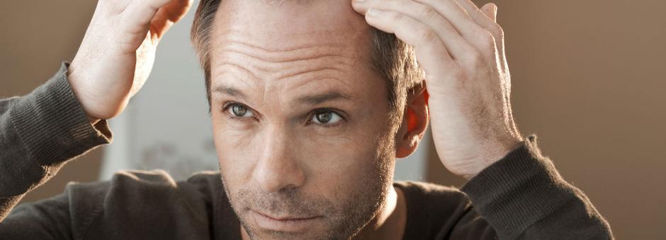Recite zbogom ćelavosti – sigurna i efikasna metoda presađivanja kose