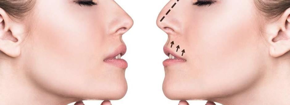 Operacija nosa - sve što ste želeli da znate