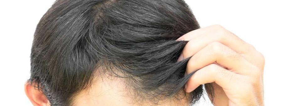 Da li ste dobar kandidat za transplantaciju kose?
