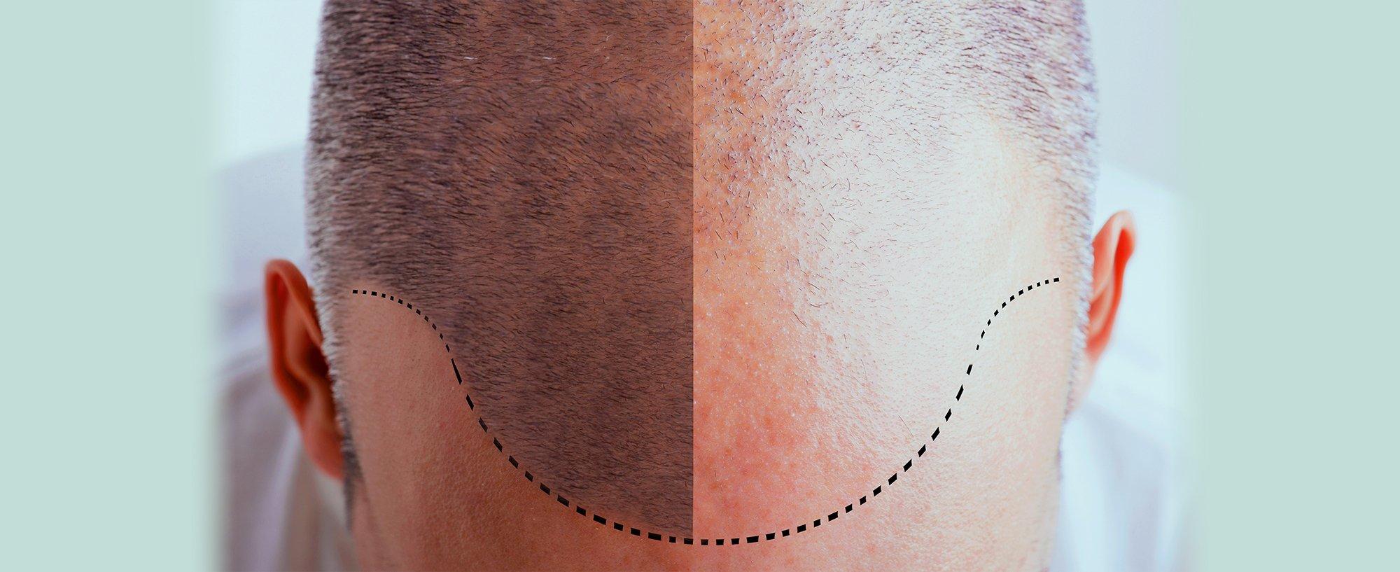 Transplantacija kose najsavremenijom metodom
