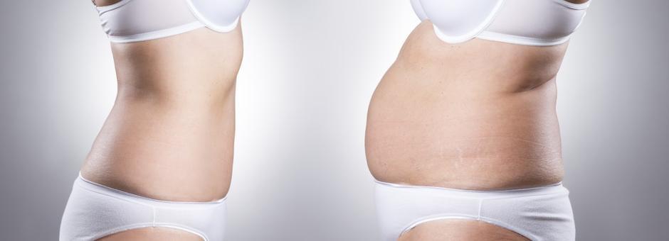 U kojim slučajevima se leči gojaznost i na koji način